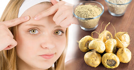 Maca root for hormonal acne
